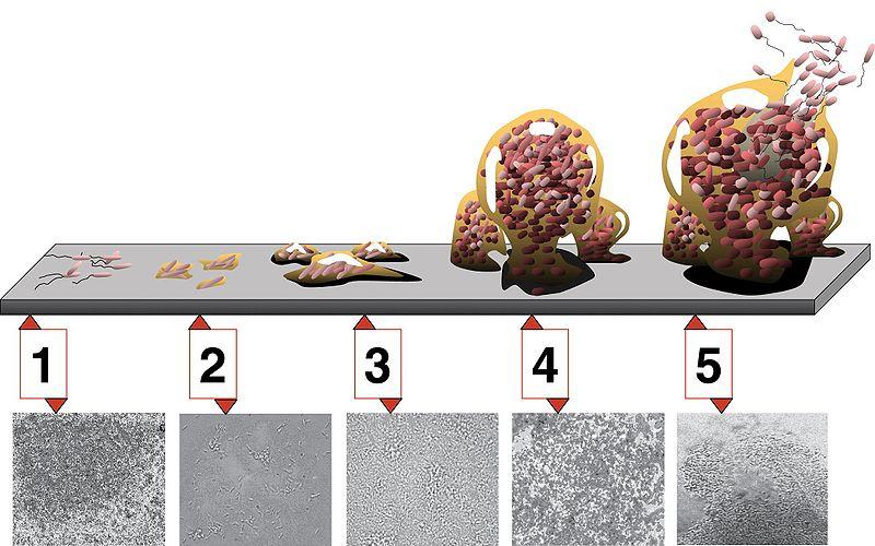 بیوفیلم باکتری | biofilm bacterial | Sara Torkamani